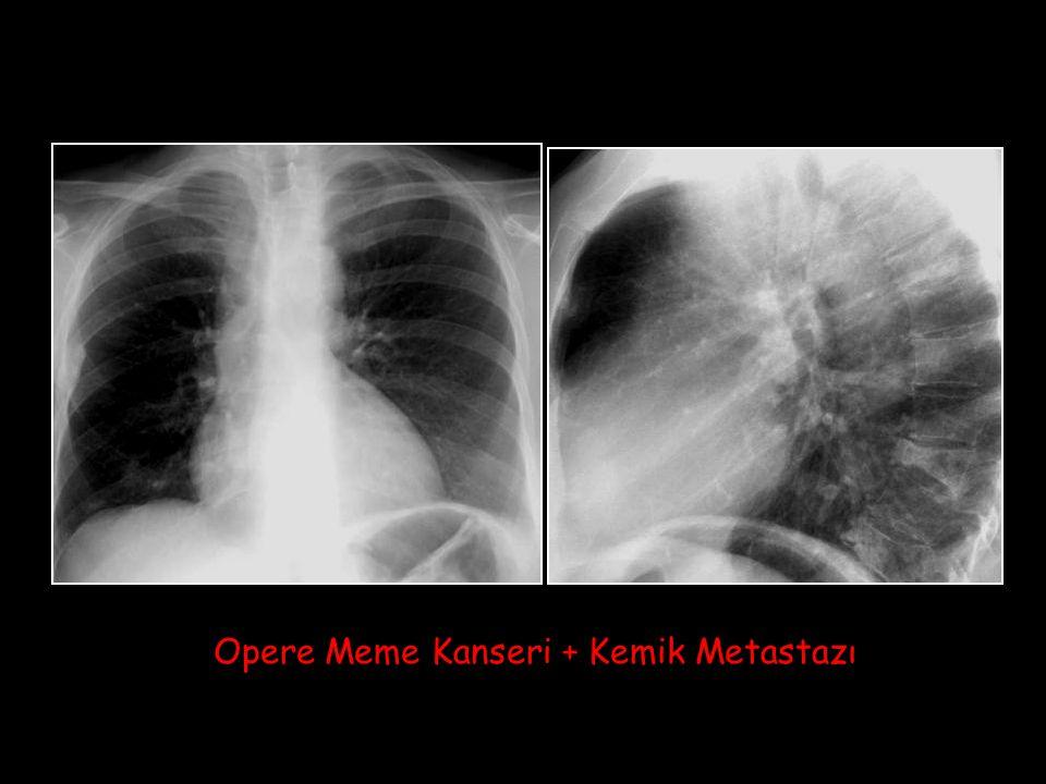 Opere Meme Kanseri + Kemik Metastazı