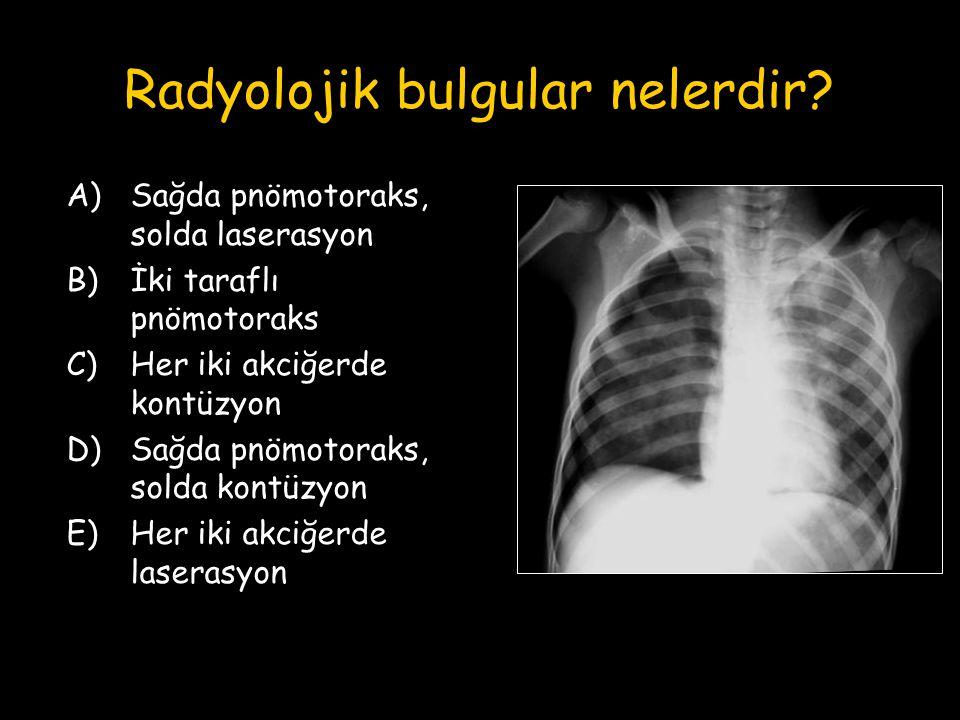 Radyolojik bulgular nelerdir