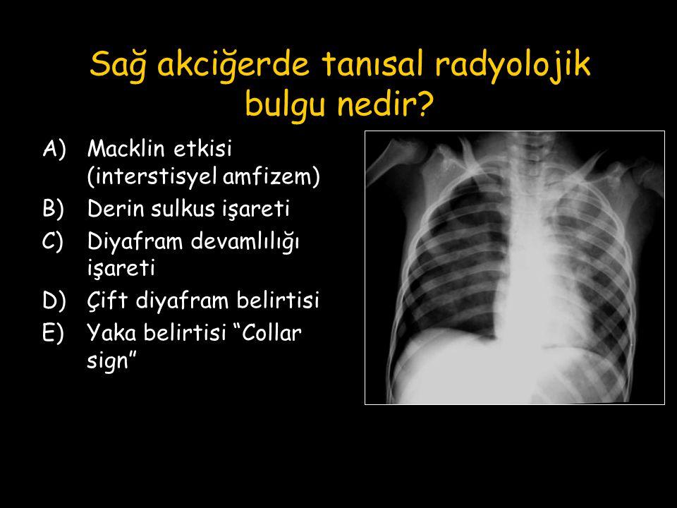 Sağ akciğerde tanısal radyolojik bulgu nedir