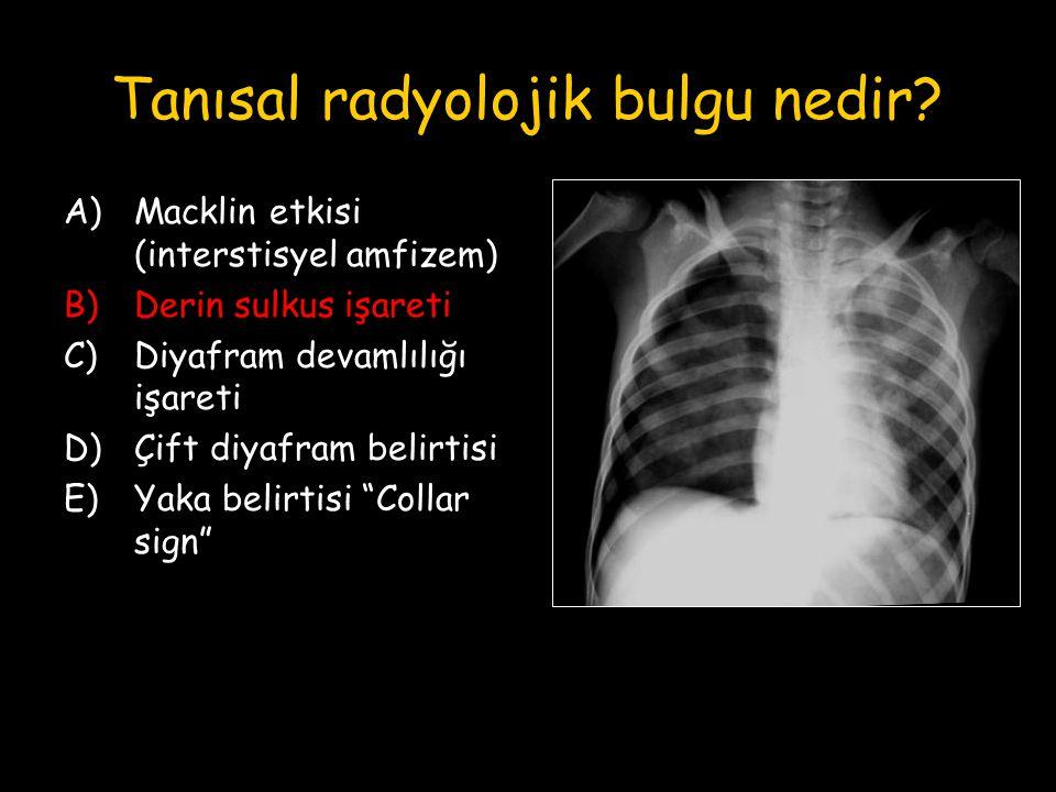 Tanısal radyolojik bulgu nedir