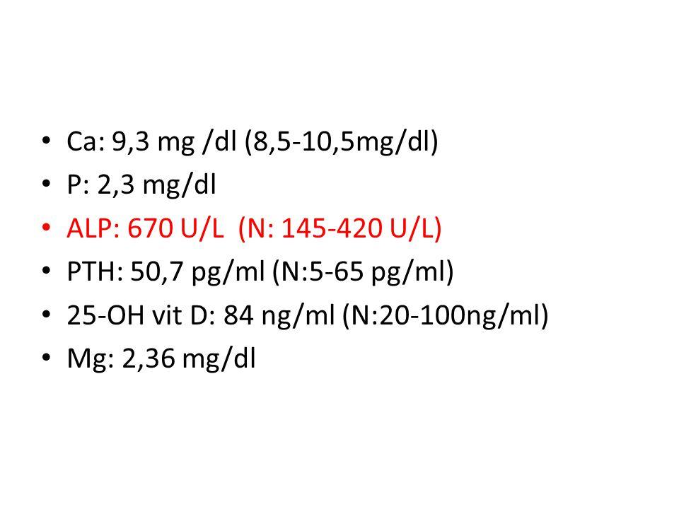 Ca: 9,3 mg /dl (8,5-10,5mg/dl) P: 2,3 mg/dl. ALP: 670 U/L (N: 145-420 U/L) PTH: 50,7 pg/ml (N:5-65 pg/ml)