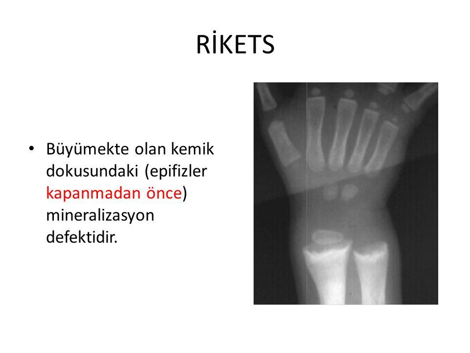 RİKETS Büyümekte olan kemik dokusundaki (epifizler kapanmadan önce) mineralizasyon defektidir.