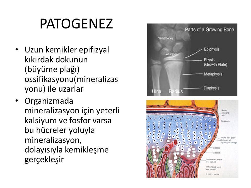 PATOGENEZ Uzun kemikler epifizyal kıkırdak dokunun (büyüme plağı) ossifikasyonu(mineralizasyonu) ile uzarlar.
