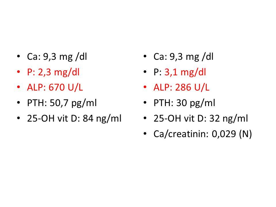Ca: 9,3 mg /dl P: 2,3 mg/dl. ALP: 670 U/L. PTH: 50,7 pg/ml. 25-OH vit D: 84 ng/ml. Ca: 9,3 mg /dl.
