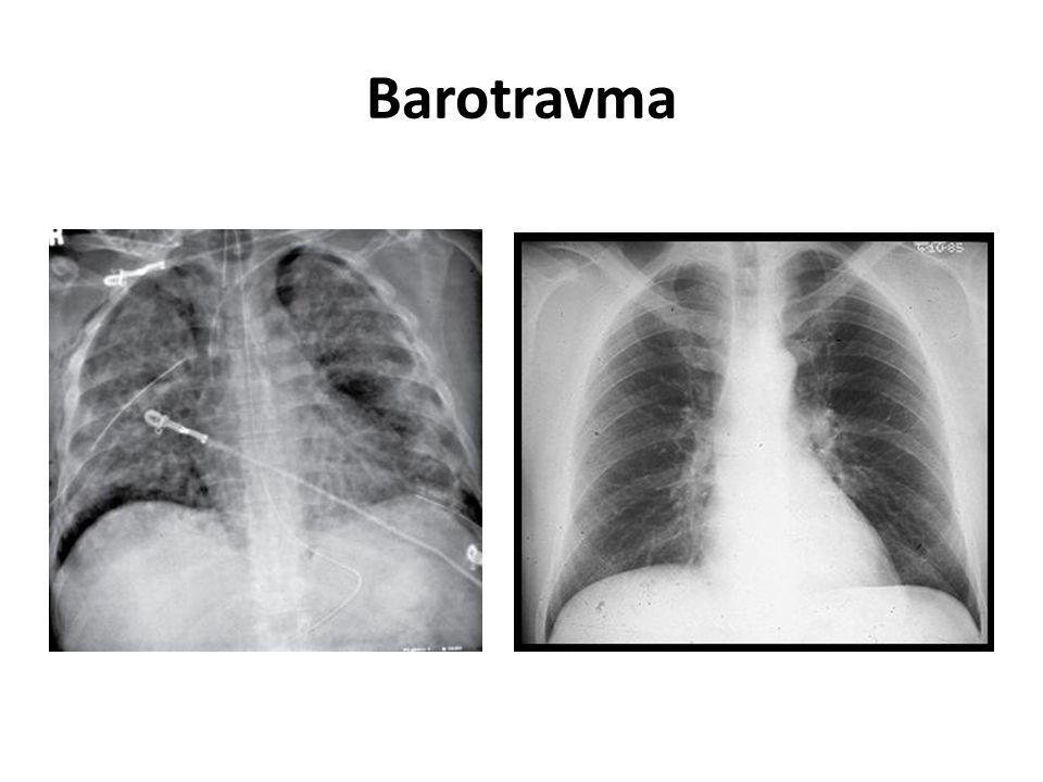 Barotravma
