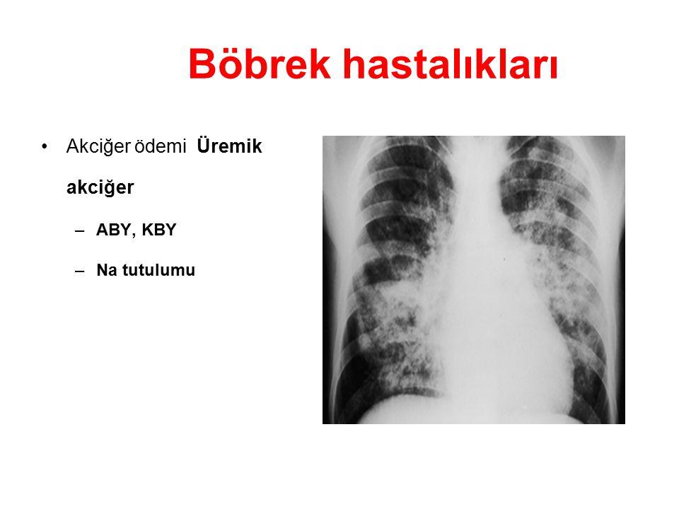 Böbrek hastalıkları Akciğer ödemi Üremik akciğer ABY, KBY Na tutulumu