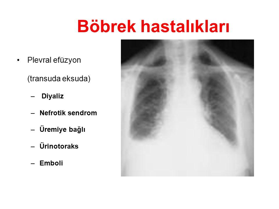 Böbrek hastalıkları Plevral efüzyon (transuda eksuda) Diyaliz