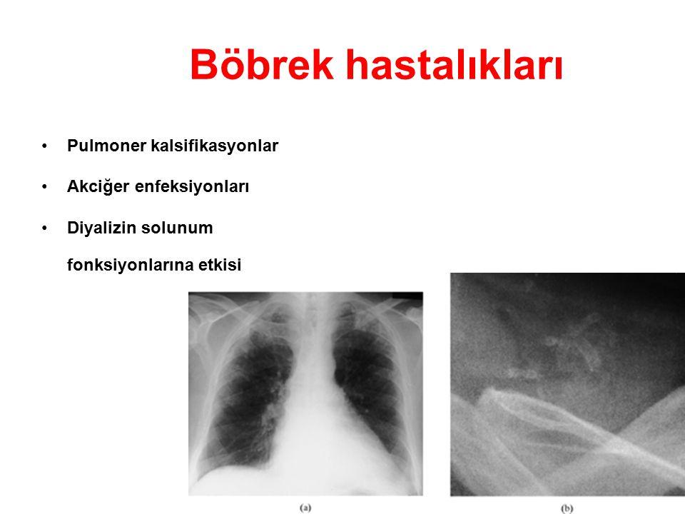 Böbrek hastalıkları Pulmoner kalsifikasyonlar Akciğer enfeksiyonları