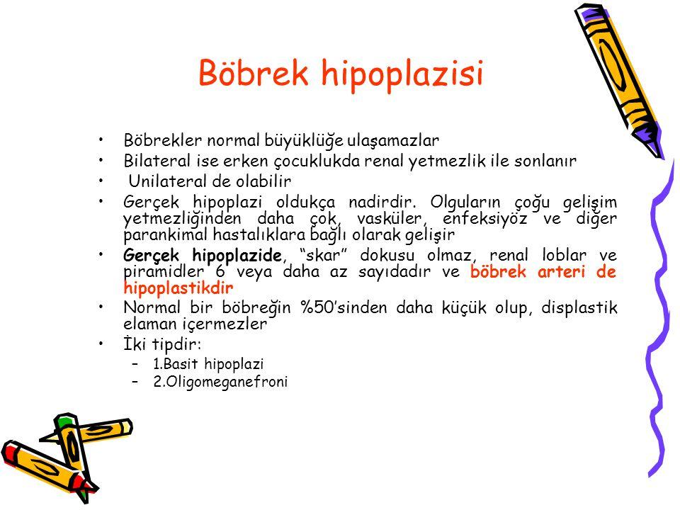 Böbrek hipoplazisi Böbrekler normal büyüklüğe ulaşamazlar