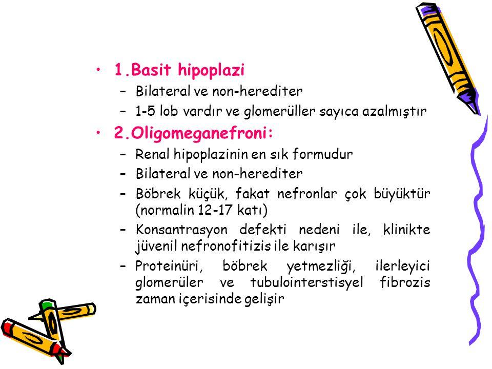 1.Basit hipoplazi 2.Oligomeganefroni: Bilateral ve non-herediter