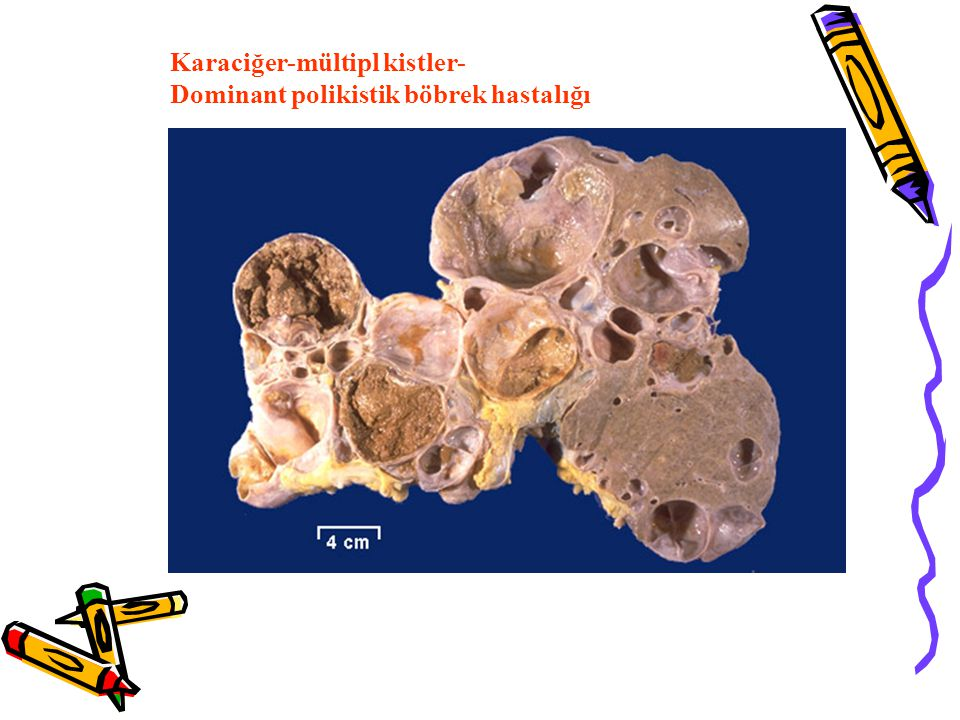 Karaciğer-mültipl kistler-