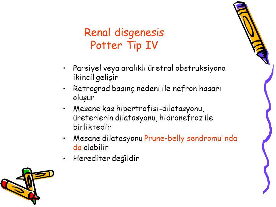 Renal disgenesis Potter Tip IV