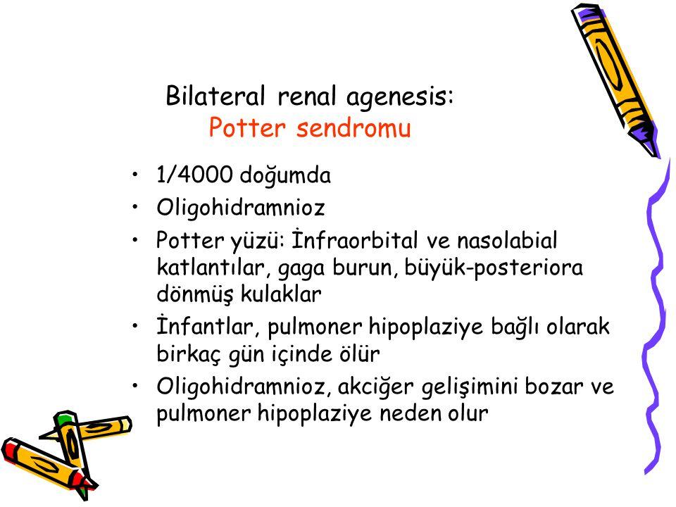 Bilateral renal agenesis: Potter sendromu