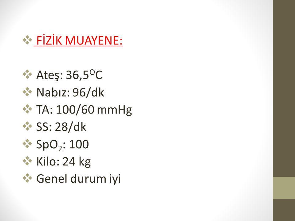 FİZİK MUAYENE: Ateş: 36,5OC. Nabız: 96/dk. TA: 100/60 mmHg. SS: 28/dk. SpO2: 100. Kilo: 24 kg.
