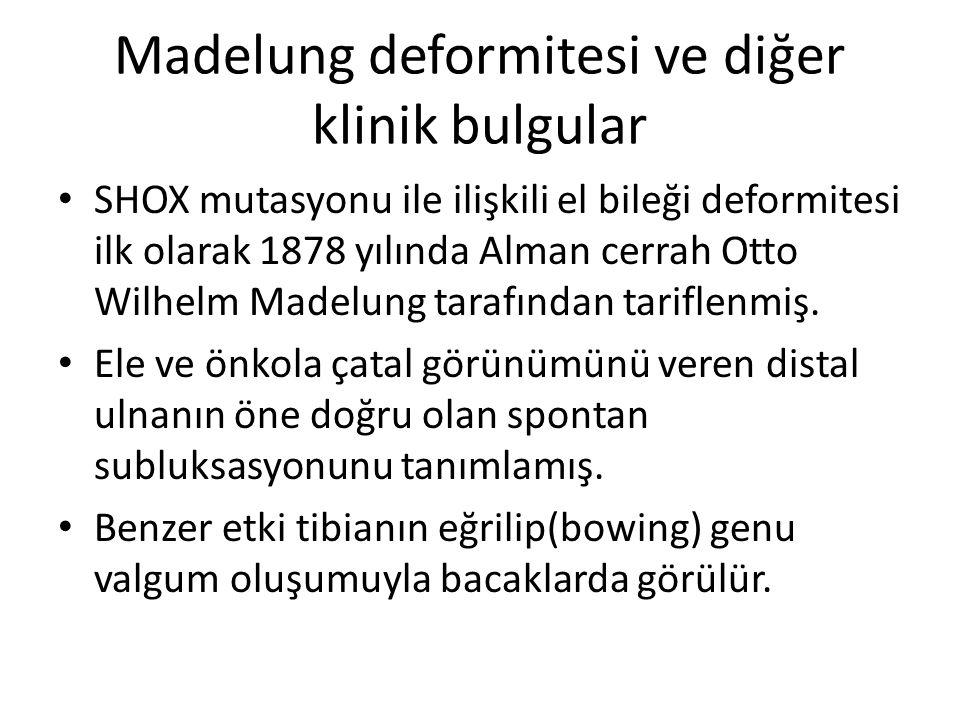 Madelung deformitesi ve diğer klinik bulgular