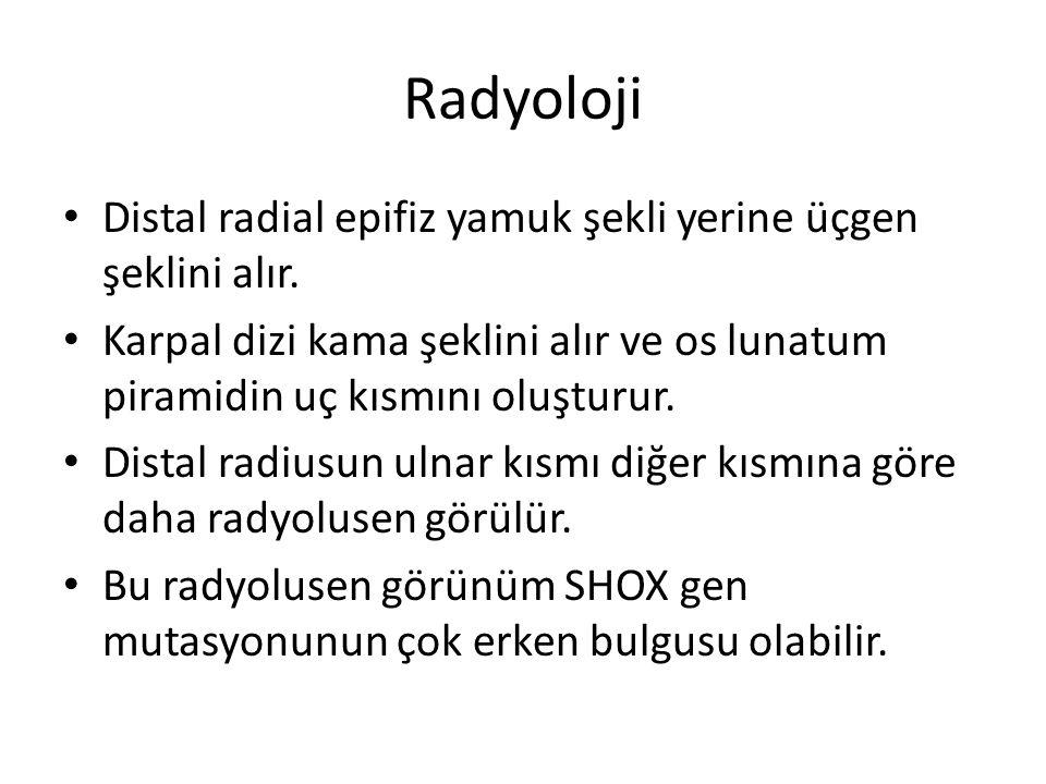 Radyoloji Distal radial epifiz yamuk şekli yerine üçgen şeklini alır.