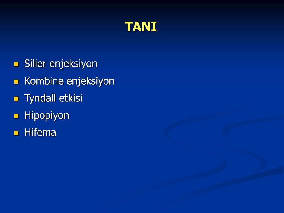 TANI Silier enjeksiyon Kombine enjeksiyon Tyndall etkisi Hipopiyon