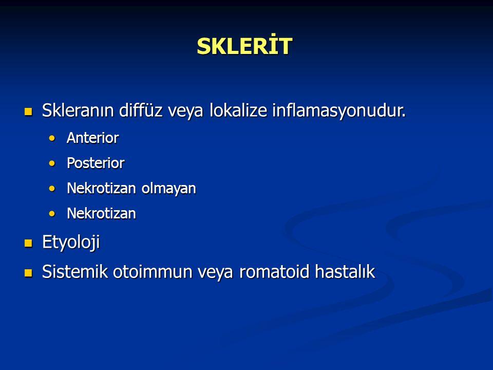 SKLERİT Skleranın diffüz veya lokalize inflamasyonudur. Etyoloji
