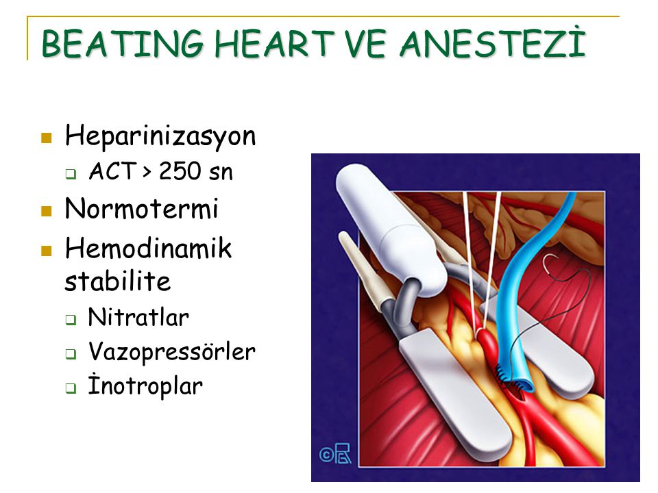BEATING HEART VE ANESTEZİ