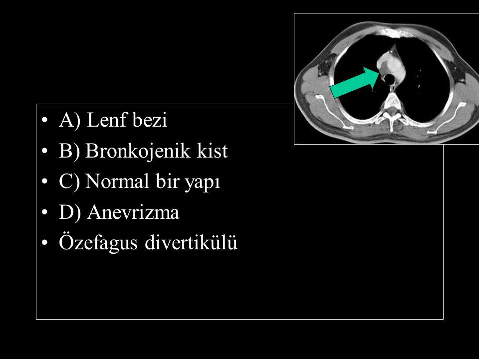 A) Lenf bezi B) Bronkojenik kist C) Normal bir yapı D) Anevrizma Özefagus divertikülü