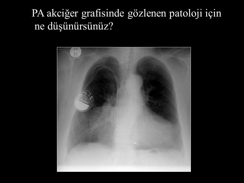 PA akciğer grafisinde gözlenen patoloji için
