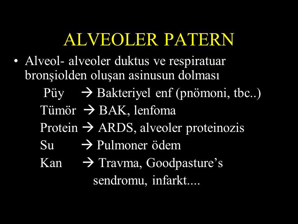 ALVEOLER PATERN Alveol- alveoler duktus ve respiratuar bronşiolden oluşan asinusun dolması. Püy  Bakteriyel enf (pnömoni, tbc..)