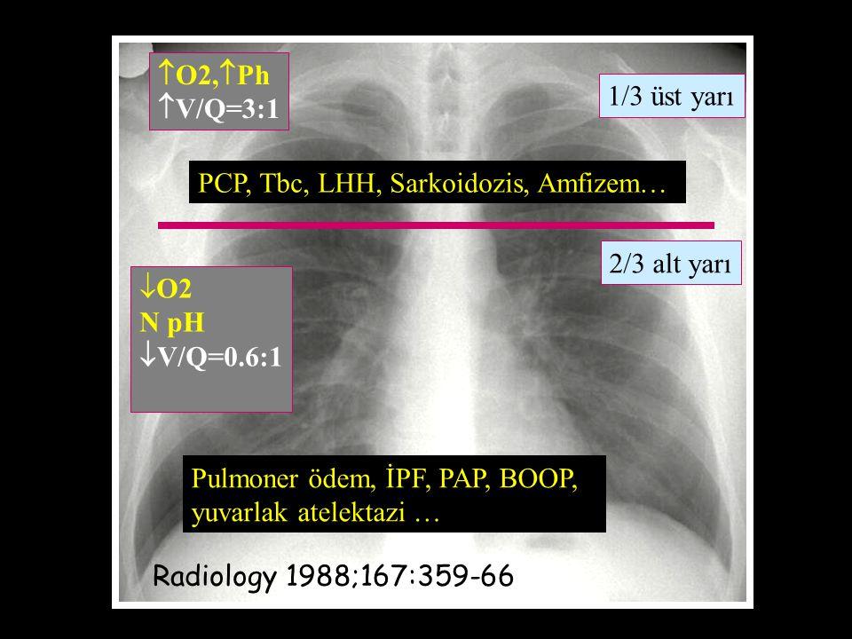 O2,Ph V/Q=3:1. 1/3 üst yarı. PCP, Tbc, LHH, Sarkoidozis, Amfizem… 2/3 alt yarı. O2. N pH. V/Q=0.6:1.