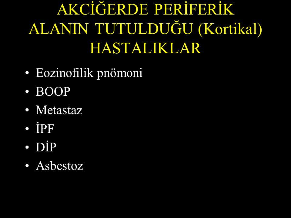 AKCİĞERDE PERİFERİK ALANIN TUTULDUĞU (Kortikal) HASTALIKLAR