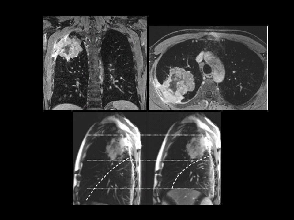 Göğüs duvarı invazyonu olan akciğer kanseri