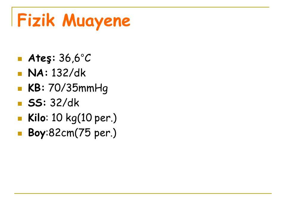 Fizik Muayene Ateş: 36,6°C NA: 132/dk KB: 70/35mmHg SS: 32/dk