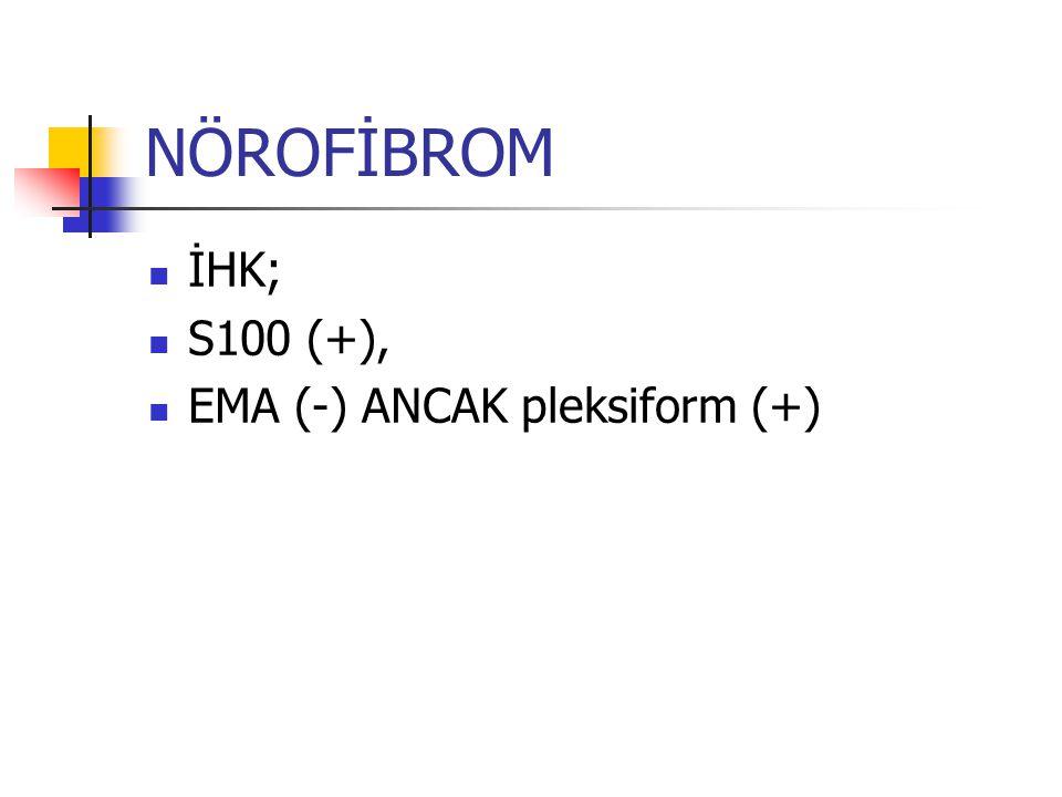NÖROFİBROM İHK; S100 (+), EMA (-) ANCAK pleksiform (+)