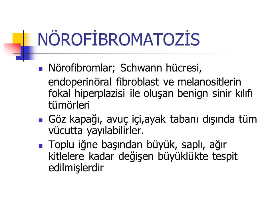 NÖROFİBROMATOZİS Nörofibromlar; Schwann hücresi,