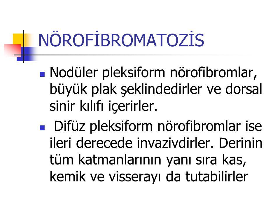 NÖROFİBROMATOZİS Nodüler pleksiform nörofibromlar, büyük plak şeklindedirler ve dorsal sinir kılıfı içerirler.