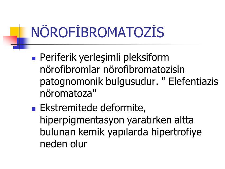NÖROFİBROMATOZİS Periferik yerleşimli pleksiform nörofibromlar nörofibromatozisin patognomonik bulgusudur. Elefentiazis nöromatoza