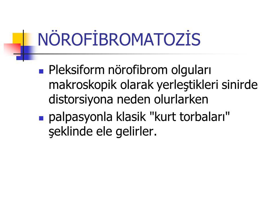 NÖROFİBROMATOZİS Pleksiform nörofibrom olguları makroskopik olarak yerleştikleri sinirde distorsiyona neden olurlarken.