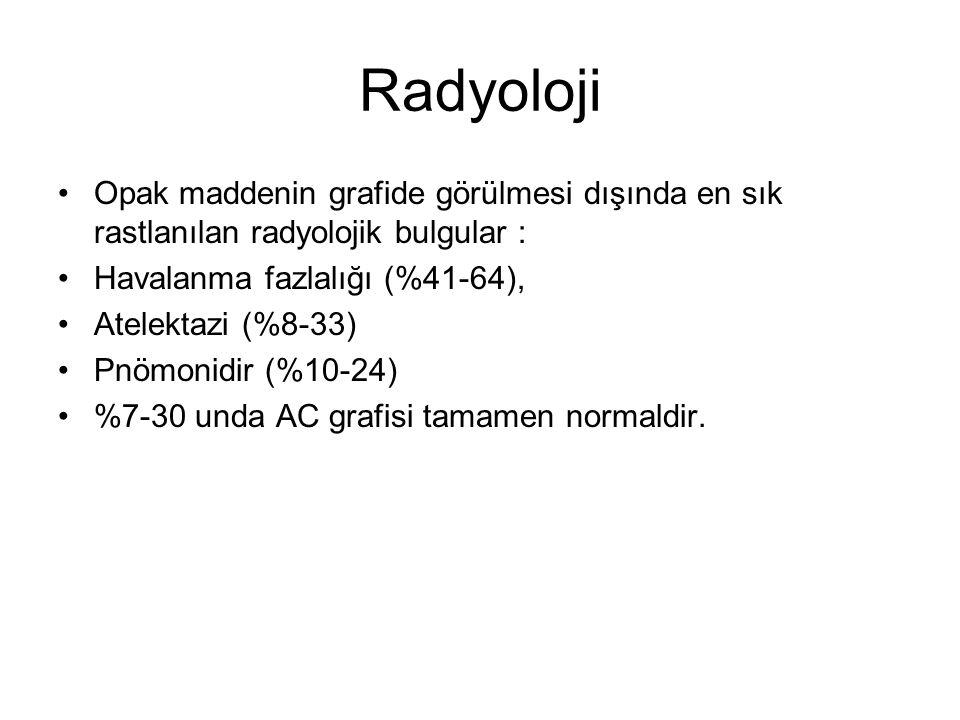 Radyoloji Opak maddenin grafide görülmesi dışında en sık rastlanılan radyolojik bulgular : Havalanma fazlalığı (%41-64),