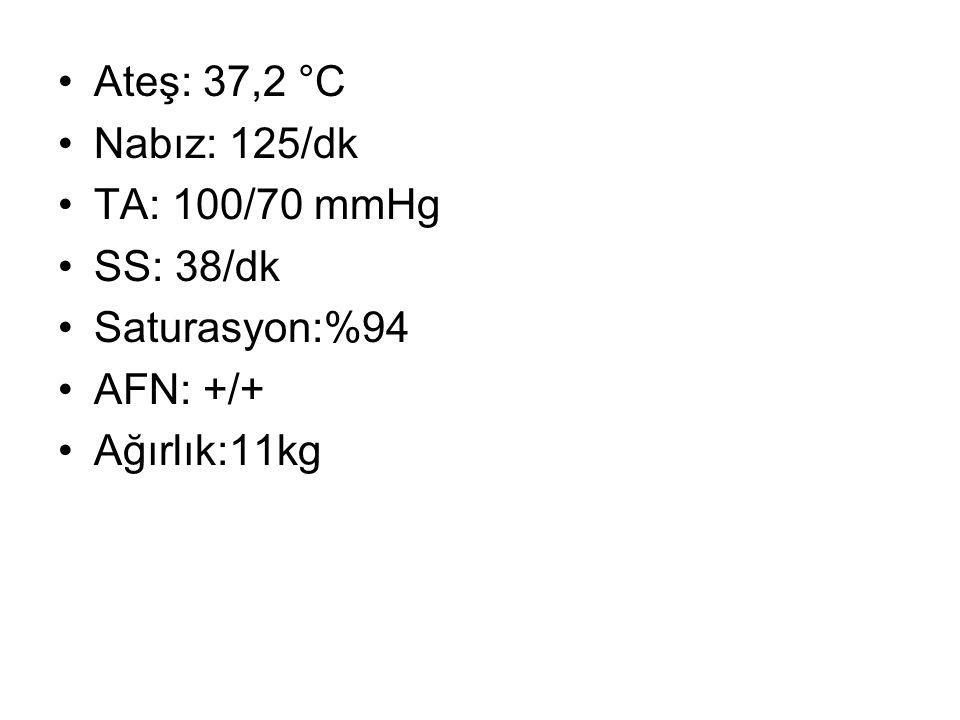 Ateş: 37,2 °C Nabız: 125/dk TA: 100/70 mmHg SS: 38/dk Saturasyon:%94 AFN: +/+ Ağırlık:11kg