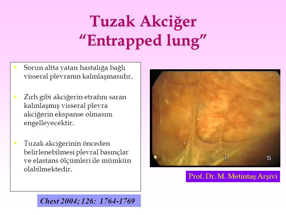 Tuzak Akciğer Entrapped lung