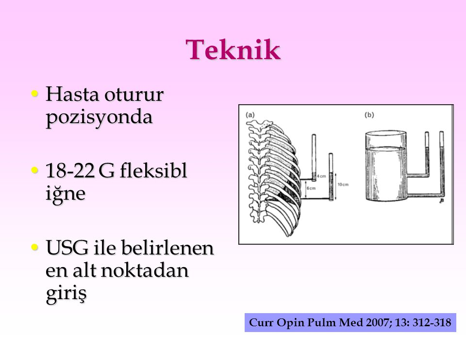 Teknik Hasta oturur pozisyonda 18-22 G fleksibl iğne
