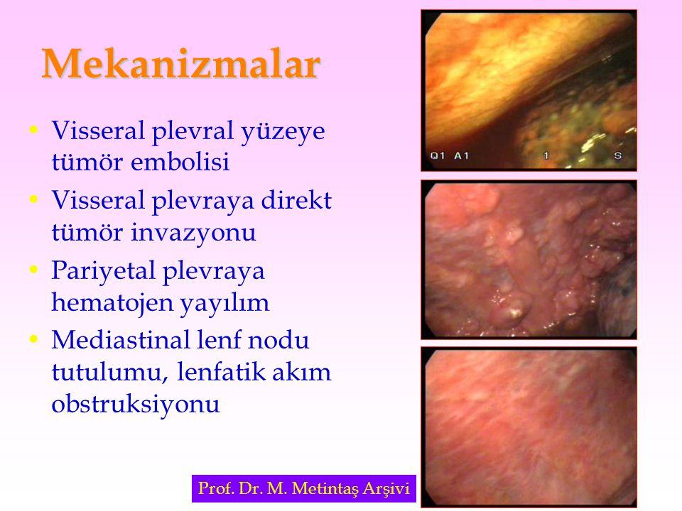 Mekanizmalar Visseral plevral yüzeye tümör embolisi