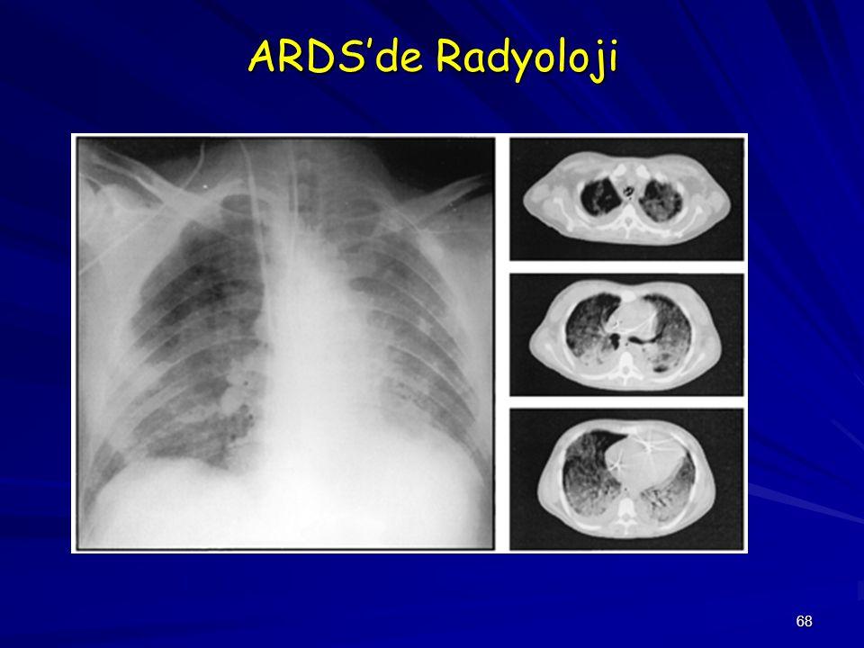ARDS'de Radyoloji