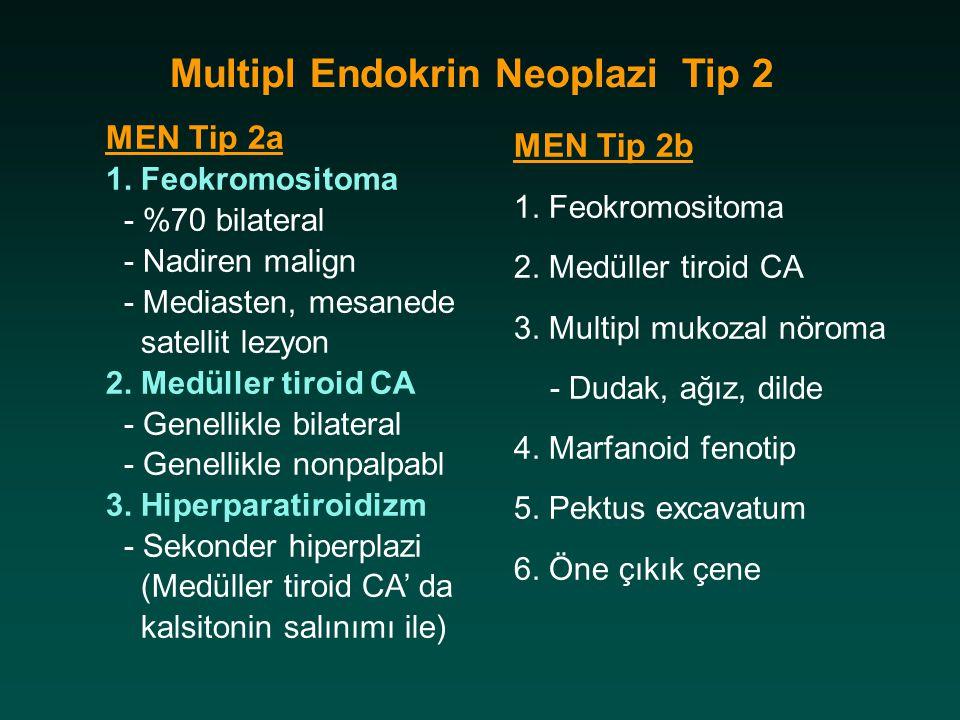 Multipl Endokrin Neoplazi Tip 2