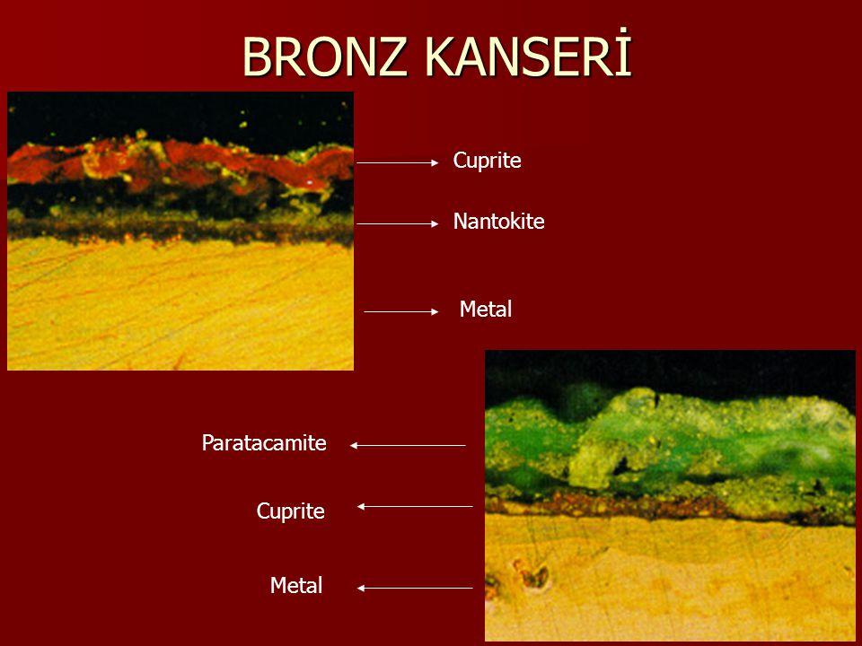 BRONZ KANSERİ Cuprite Nantokite Metal Paratacamite Cuprite Metal