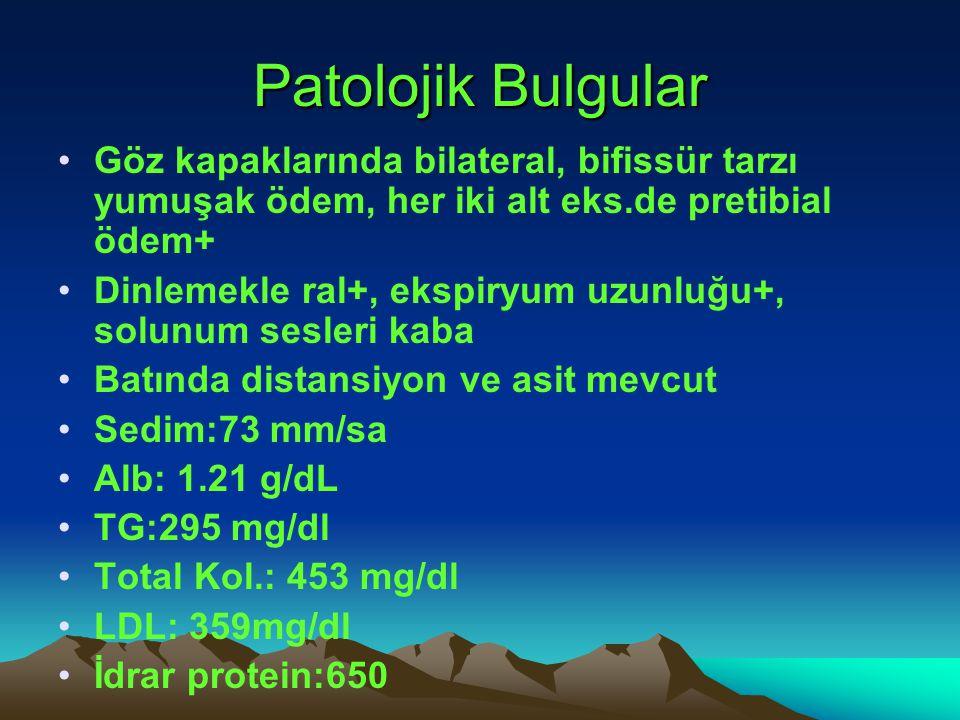 Patolojik Bulgular Göz kapaklarında bilateral, bifissür tarzı yumuşak ödem, her iki alt eks.de pretibial ödem+