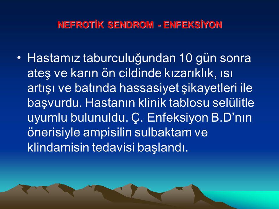 NEFROTİK SENDROM - ENFEKSİYON