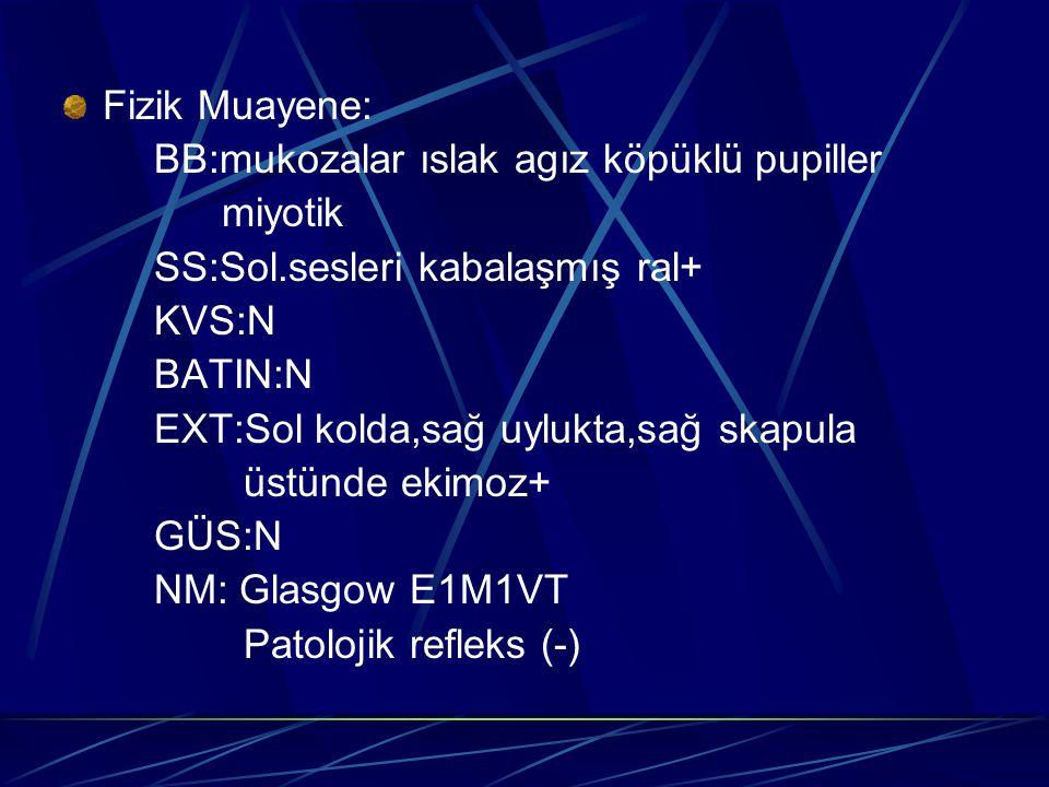 Fizik Muayene: BB:mukozalar ıslak agız köpüklü pupiller. miyotik. SS:Sol.sesleri kabalaşmış ral+ KVS:N.