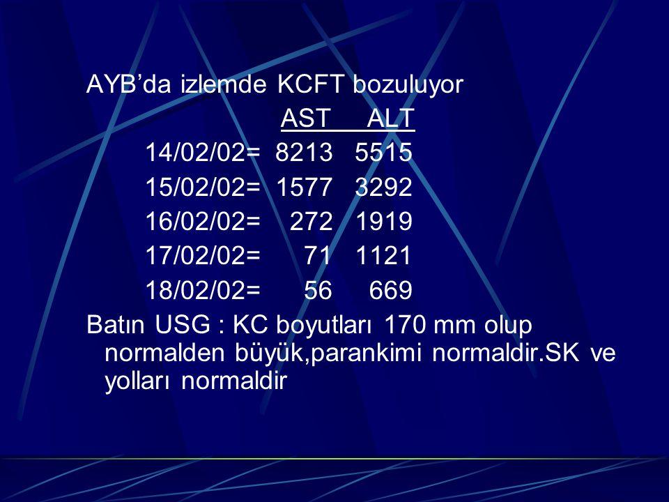 AYB'da izlemde KCFT bozuluyor