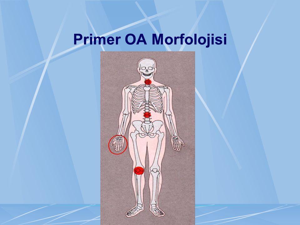 Primer OA Morfolojisi