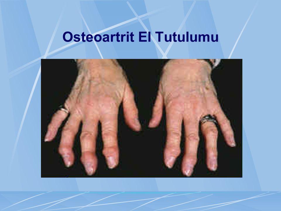 Osteoartrit El Tutulumu