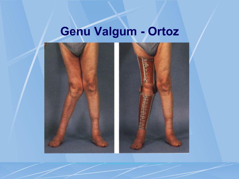 Genu Valgum - Ortoz